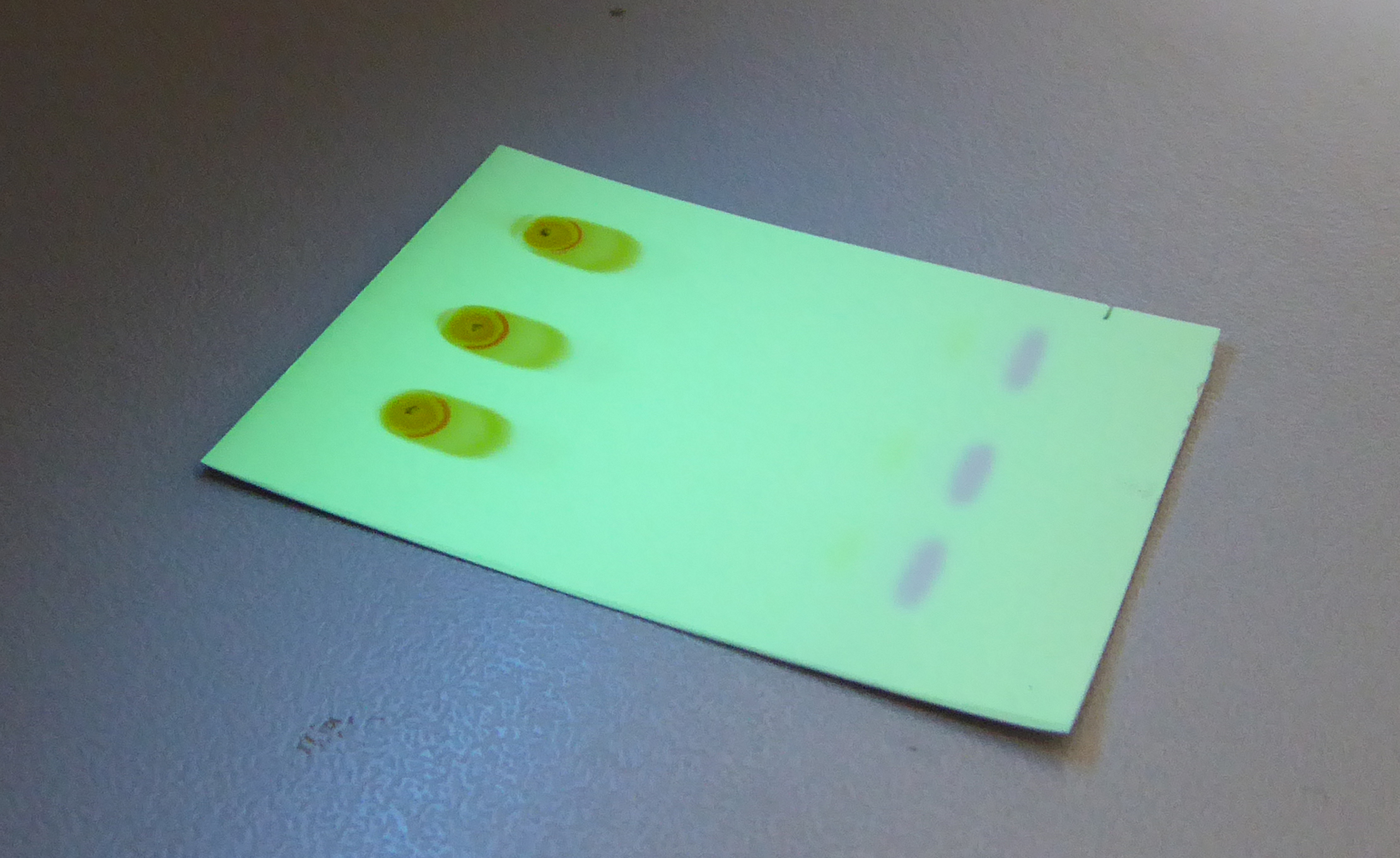 spots on a TLC plate viewed under UV light